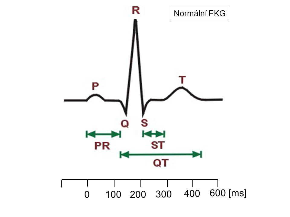 Normální EKG 100 200 300 400 600 [ms]